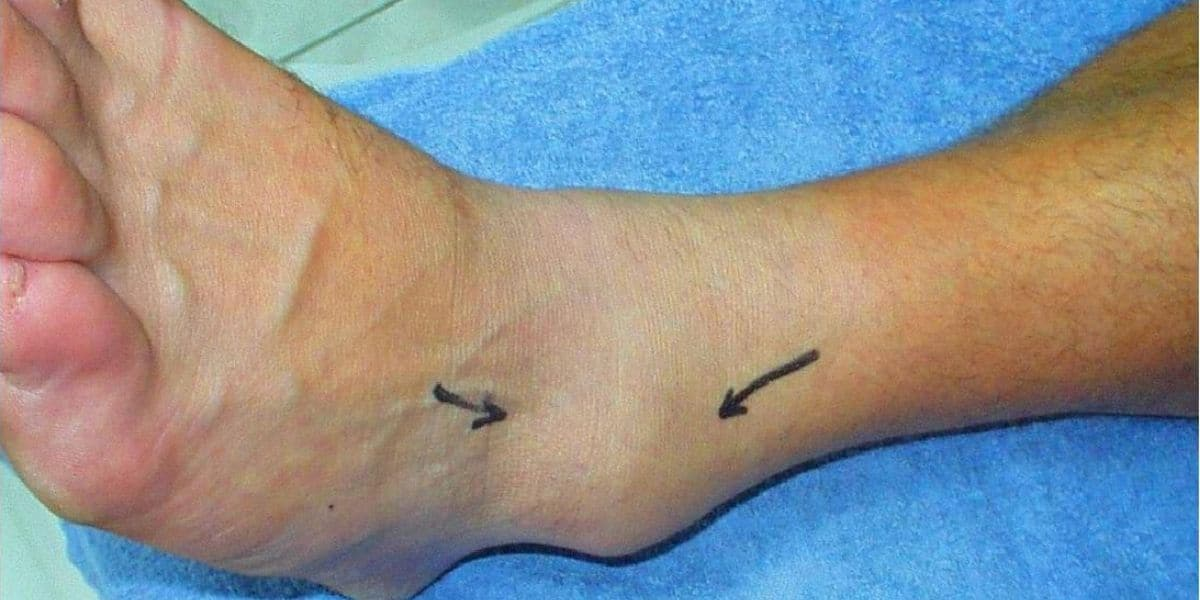 Can Plantar Fasciitis Cause Ankle Swelling