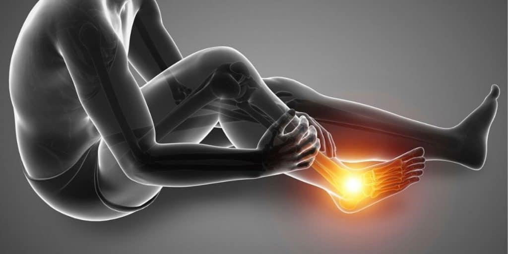 can shoes cause plantar fasciitis